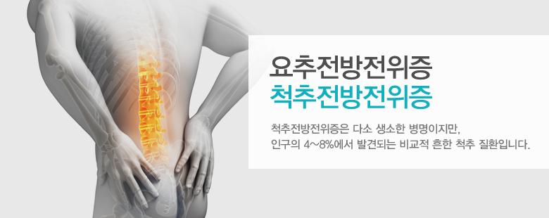 요추전방전위증 척추전방전위증