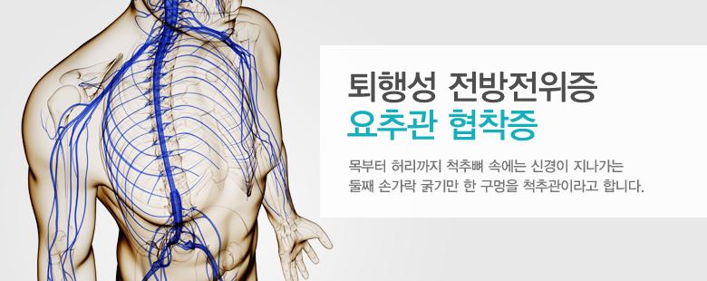 퇴행성 전방전위증 요추관 협착증