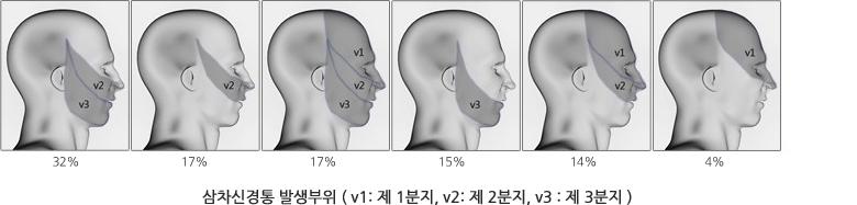 삼차신경통 발생부위 ( v1: 제 1분지, v2: 제 2분지, v3 : 제 3분지 )