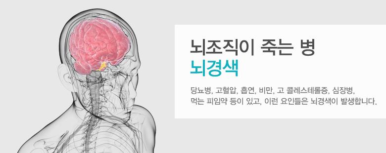 뇌조직이 죽는 병 뇌경색