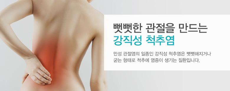 뻣뻣한 관절을 만드는 강직성 척추염
