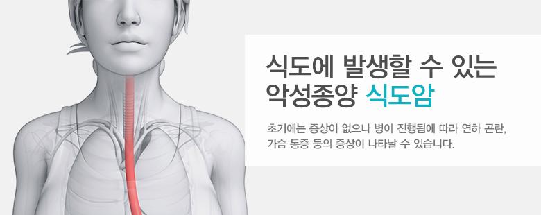 식도에 발생할 수 있는 악성종양 식도암