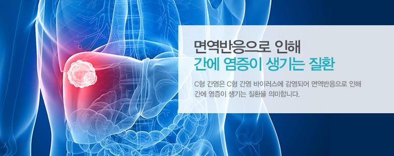 면역반응으로 인해 간에 염증이 생기는 질환
