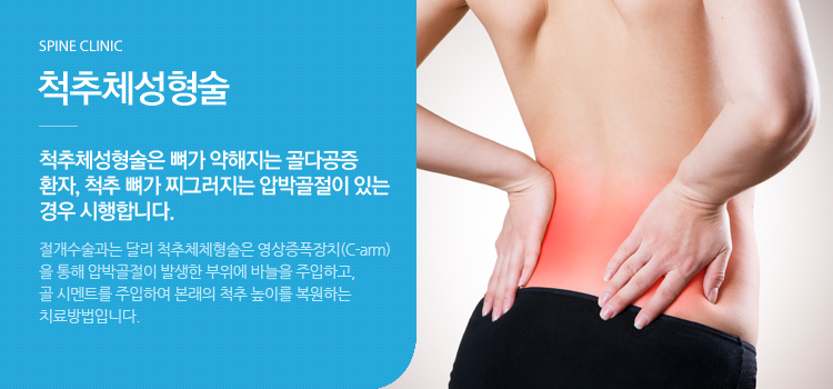 척추체성형술 척추체체형술은 뼈가 약해지는 골다공증 환자, 척추 뼈가 찌그러지는 압박골절이 있는 경우 시행합니다.