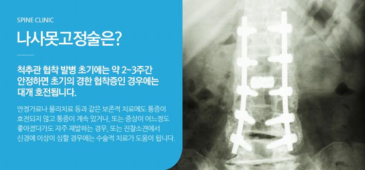 나사못고정술은? 척추관 협착 발병 초기에는 약 2~3주간 안정하면 초기의 경한 협착증인 경우에는 대개 호전됩니다.