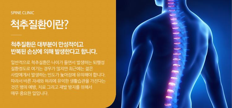 척추질환이란? 척추질환은 대부분이 만성적이고 반복된 손상에 의해 발생한다고 합니다.